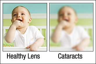 Healthy eye versus eye with Cataracts